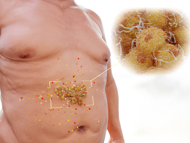 Visceral fat is highly hormonally active stock photo