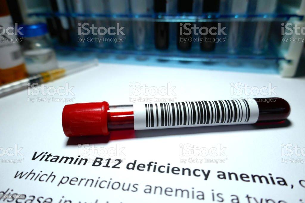 ビタミン B12 欠乏性貧血 - カナダのロイヤリティフリーストックフォト