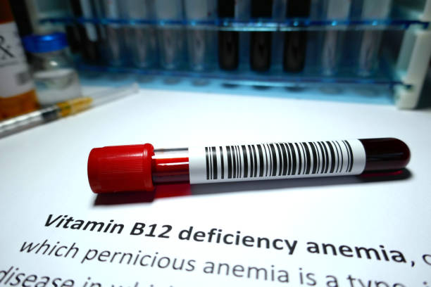 vitamin b12 deficiency anemia - deficient stock pictures, royalty-free photos & images