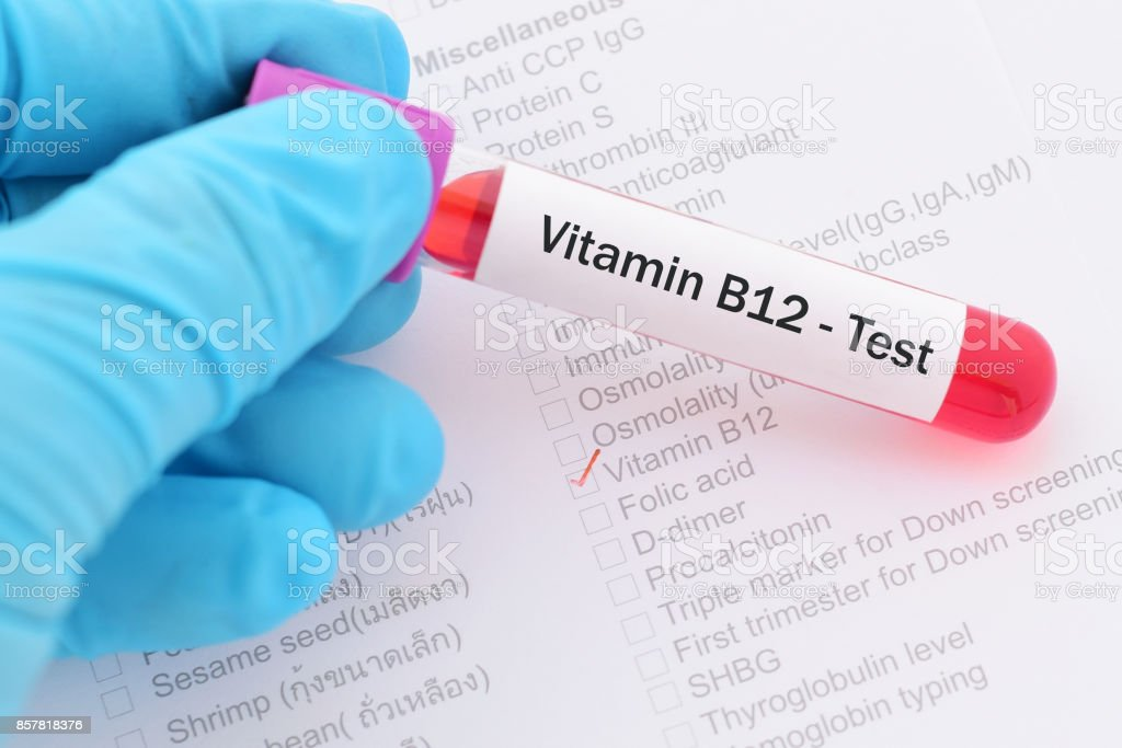 Vitamin B12 test stock photo