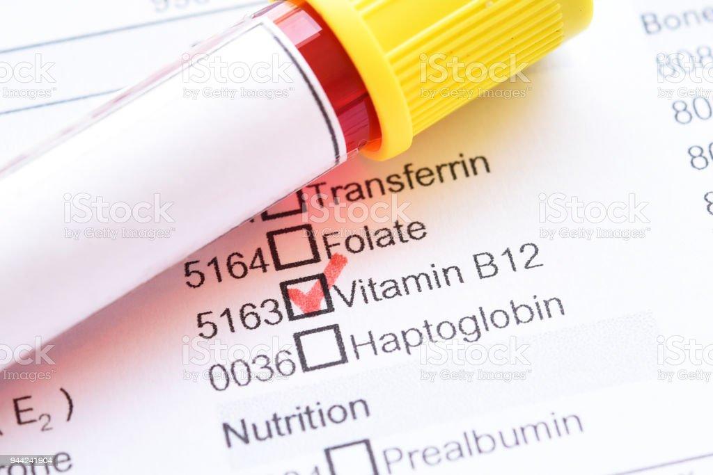 Vitamin B12 test stock photo
