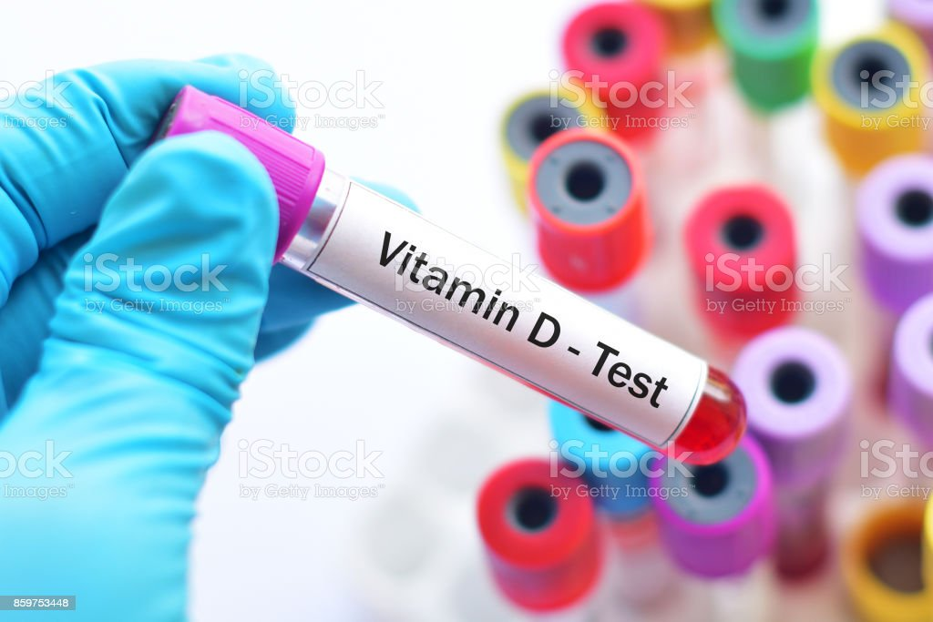 Vitamin D test stock photo