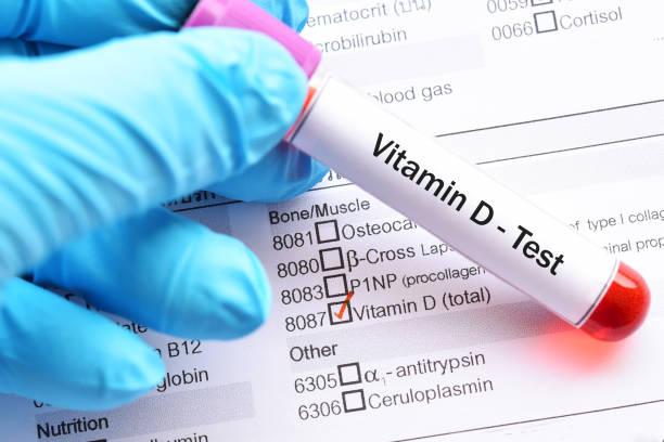 Vitamin D test stock photo