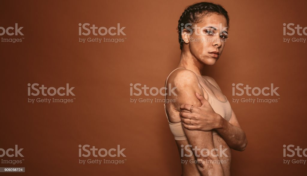 Vitiligo affected young woman in studio stock photo