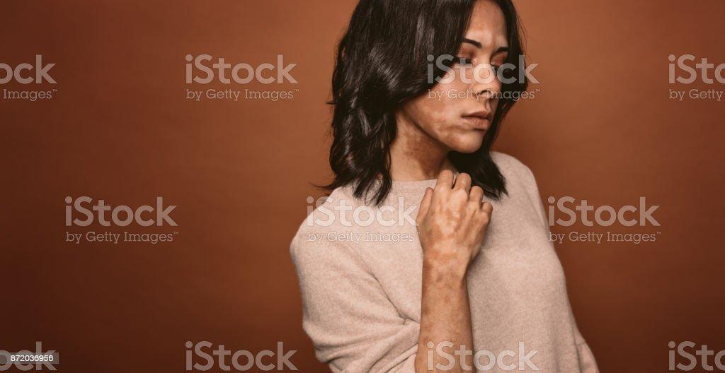 Vitiligo betroffene junge Frau - Lizenzfrei Ansteckende Krankheit Stock-Foto