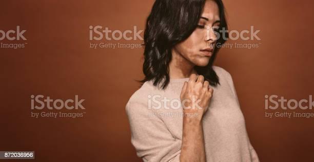 Vitiligo Betroffene Junge Frau Stockfoto und mehr Bilder von Ansteckende Krankheit