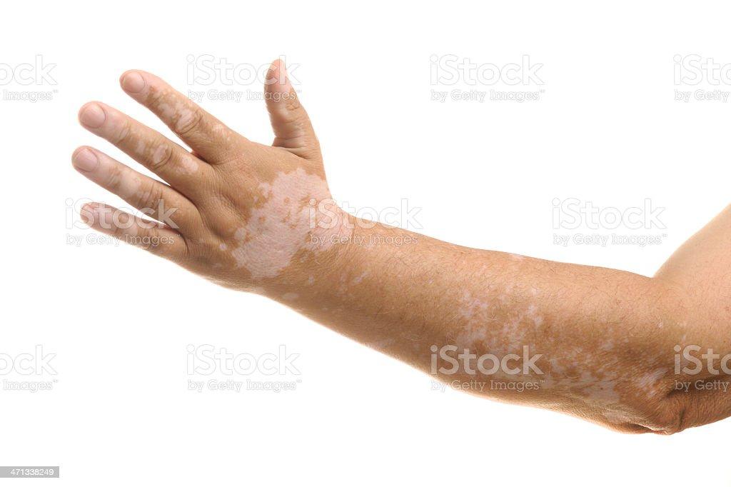 Vitiligo on arm and hand royalty-free stock photo
