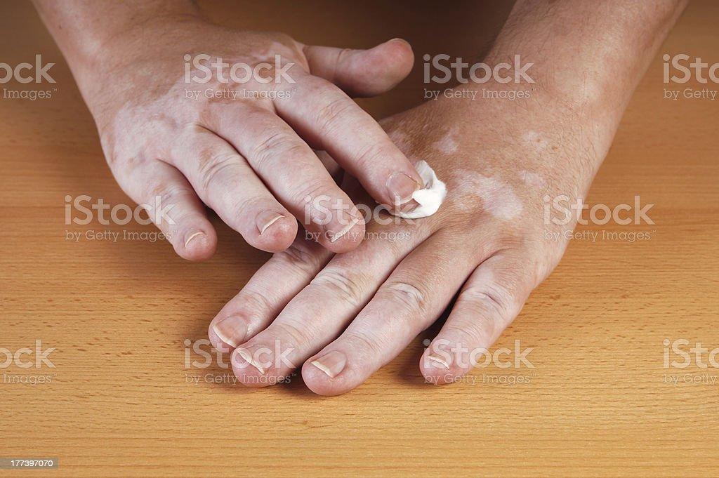 Vitiligo – Foto