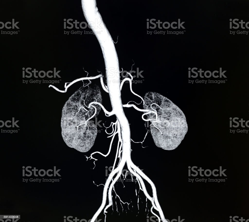 volume rendering aorta and  renal artery CT image – Foto