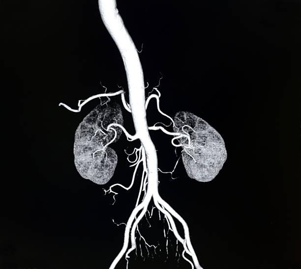 volume rendering aorta and  renal artery CT image – Foto