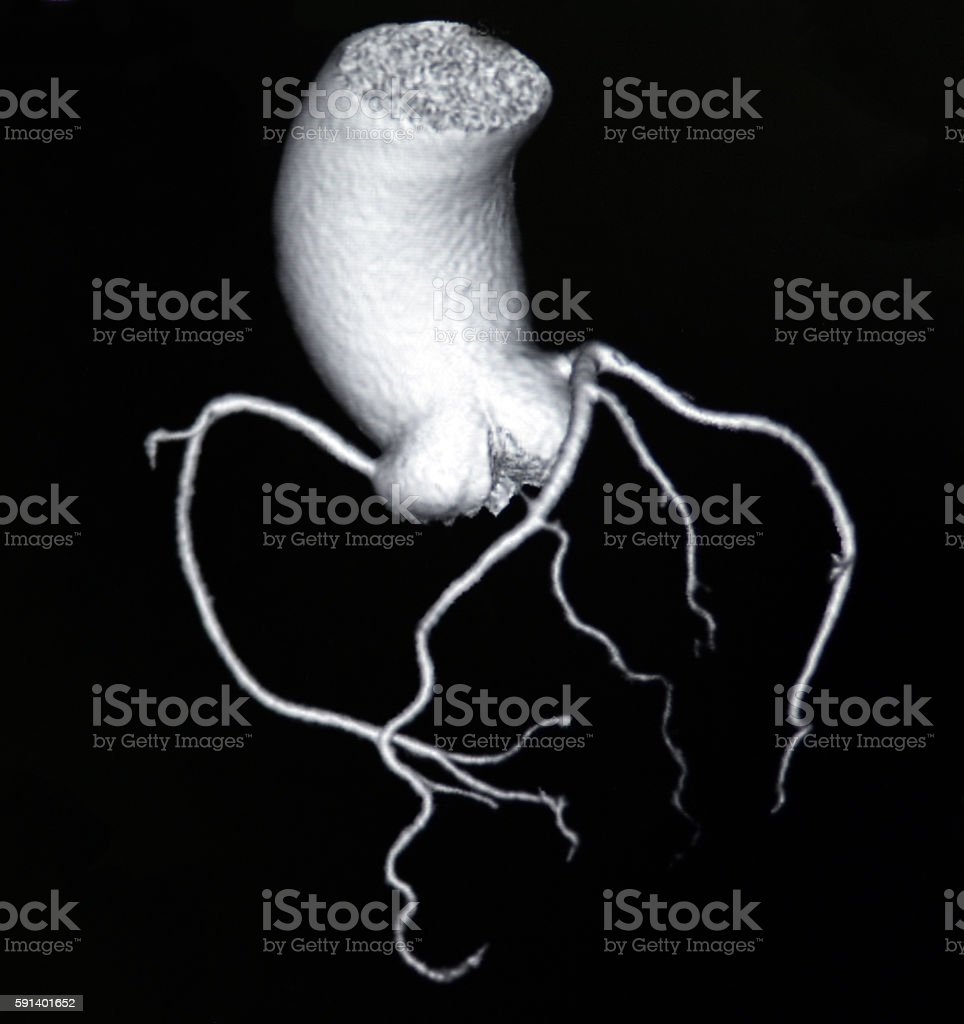 Volume Rendering Heart And Coronary Artery Ct Image Stock Photo ...