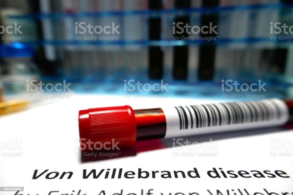 Von Willebrand blood clot disease - Royalty-free Analyzing Stock Photo