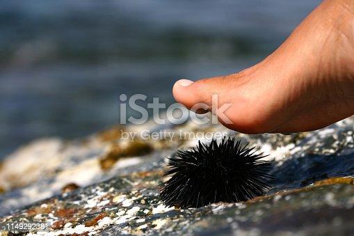 walk on a sea urchin at the beach