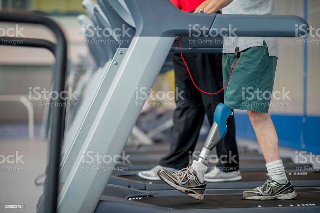 Walking with a Prosthetic Leg stock photo