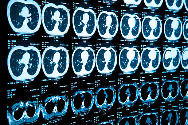 Wall of side by side body medical scan results stock photo