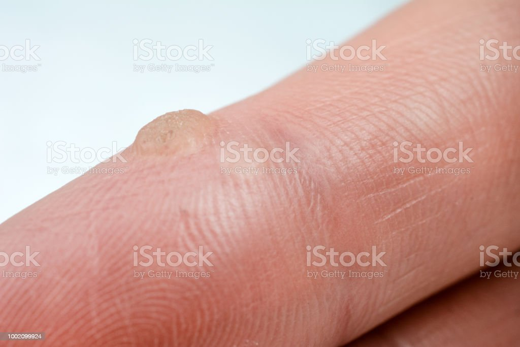 verruga dedo contagio