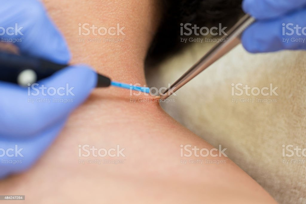 Wart removal stock photo