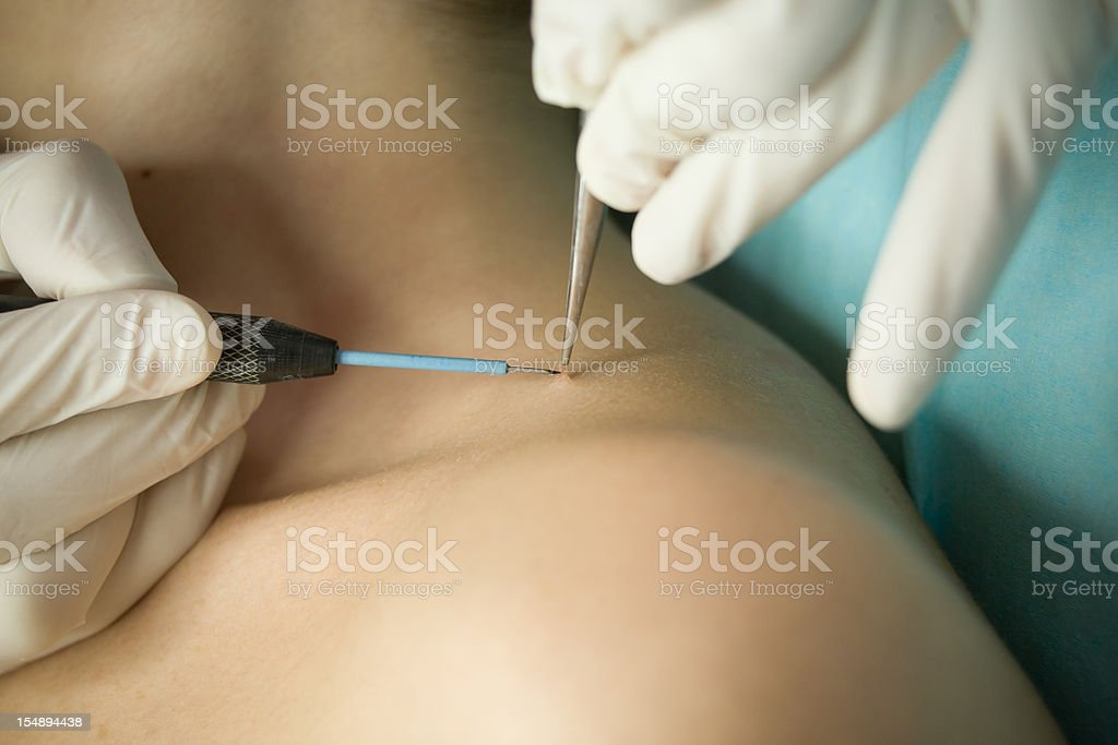 Wart removing stock photo