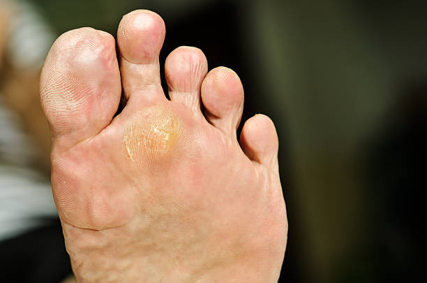 wart under foot can treatment by salicylic acid. - verrue pied photos et images de collection