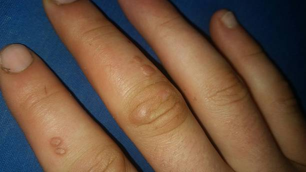 Warts on the hand Warts on the hand wart stock pictures, royalty-free photos & images