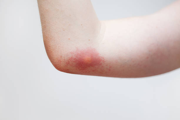 Wasp Sting Allergy on the skin after the wasp sting. stinging stock pictures, royalty-free photos & images