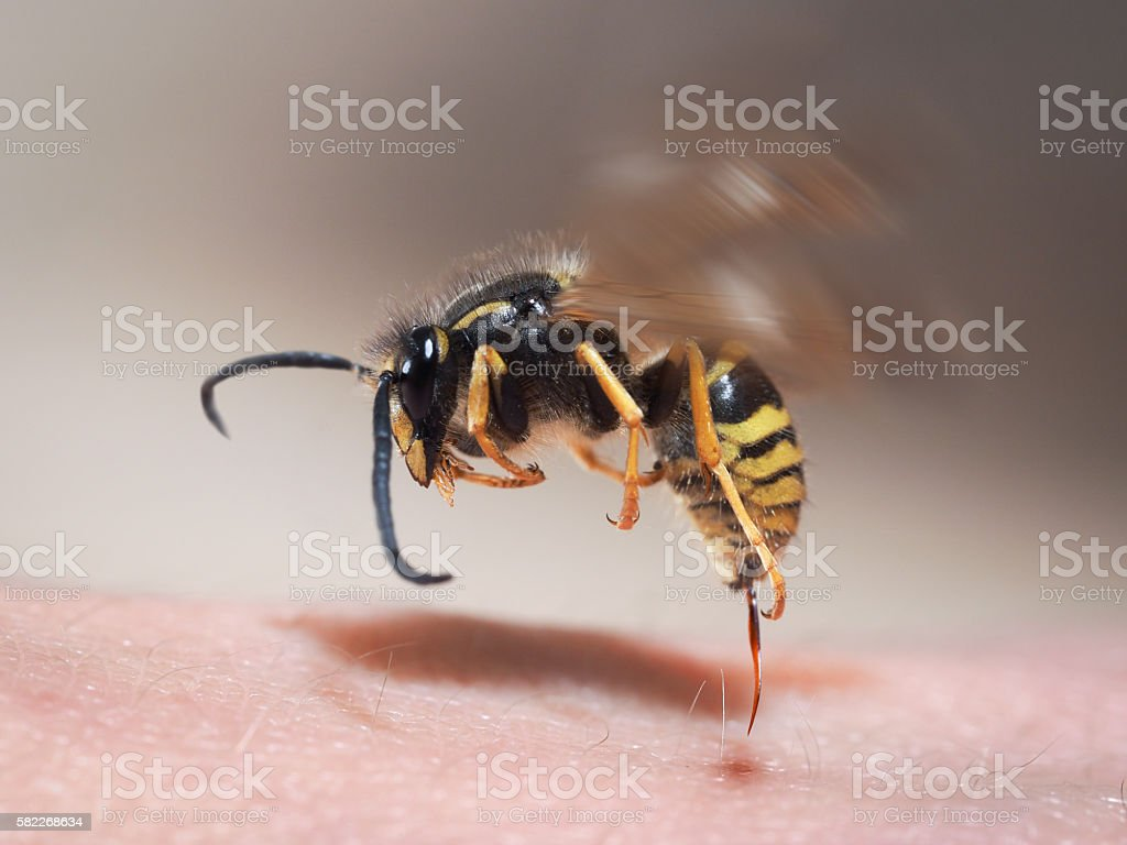 Wasp sting pulls out of human skin. macro - foto de stock