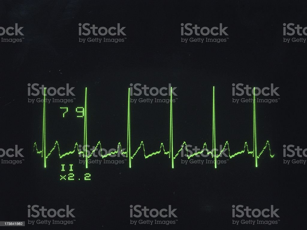 ECG waveform royalty-free stock photo