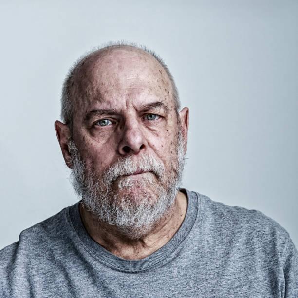 Müde leitender Mann Krebs Chemotherapie Patient – Foto