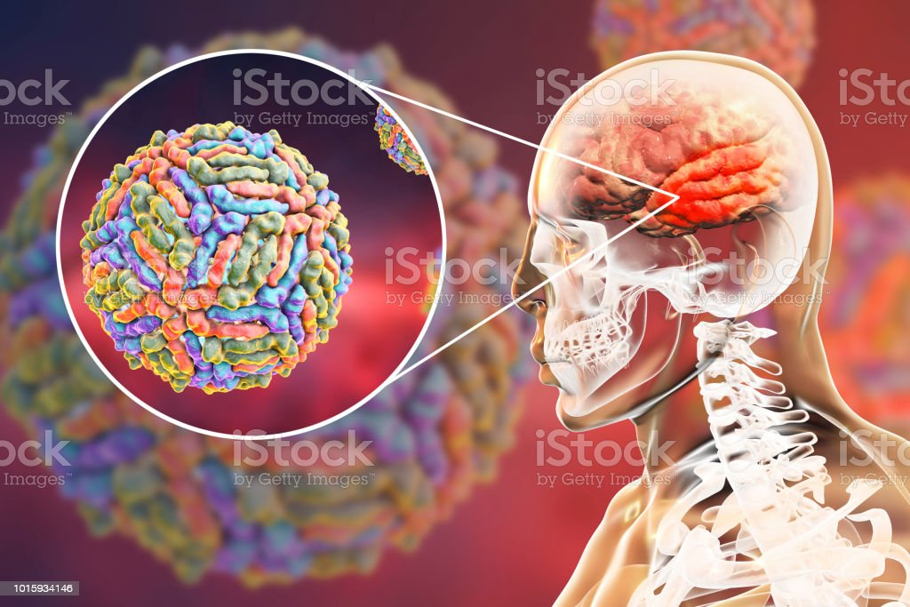 West Nile virus encephalitis stock photo