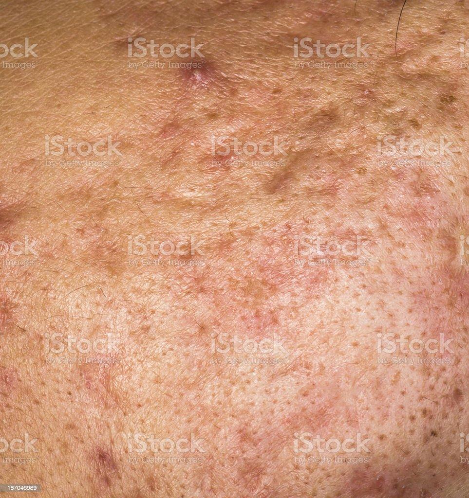 whelk pimple skin texture royalty-free stock photo