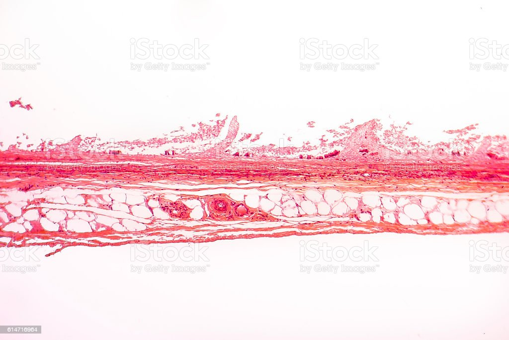 White adipose tissue – Foto