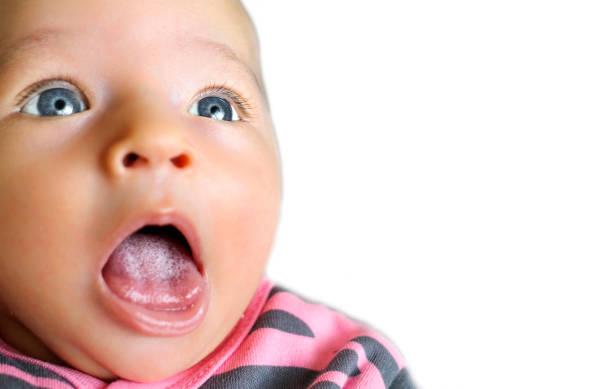 white crooked spots on baby tongue (Moniliazis) stock photo