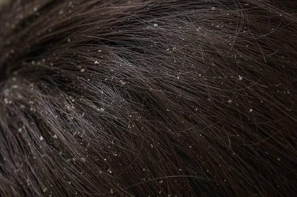 white dandruff flakes in dry hair on head. - trockene kopfhaut was tun stock-fotos und bilder