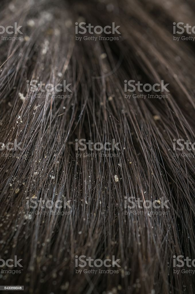 White dandruff flakes in dry hair on head. stock photo