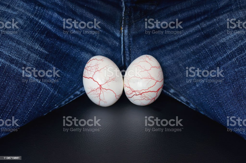 White eggs - a symbol of man's balls. varicocele - male disease leading to infertility in men. the concept of risk urological diseases. Varicose veins on the testicles. stock photo
