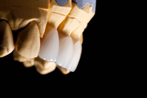 folheados de brancos dentes da frente no diagnóstico do modelo em fundo escuro. close-up. - porcelana - fotografias e filmes do acervo