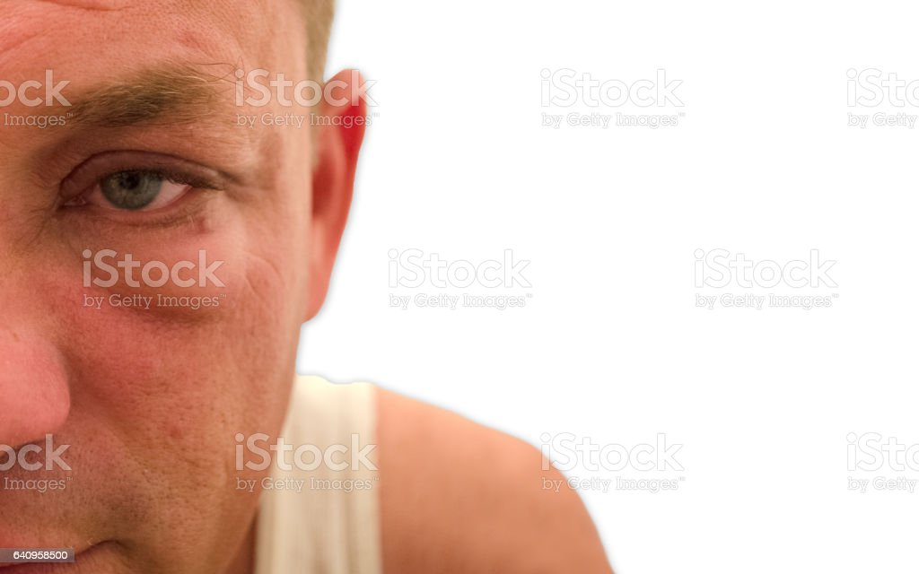 White Male With Red Swollen Eye stock photo