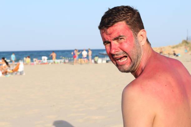 Homem branco na praia durante a onda de calor - foto de acervo