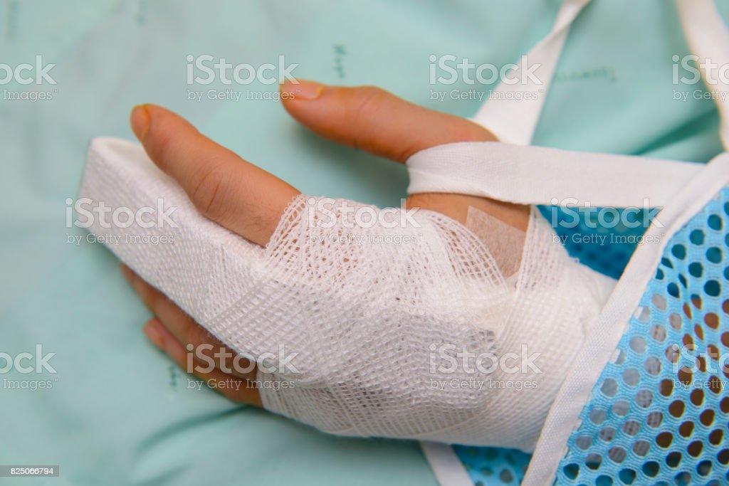 White medicine bandage on broken finger stock photo