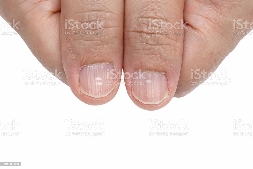 White spots and Vertical ridges on the fingernails stock photo