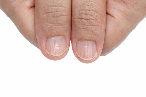 white spots and vertical ridges on the fingernails - deficient stock pictures, royalty-free photos & images