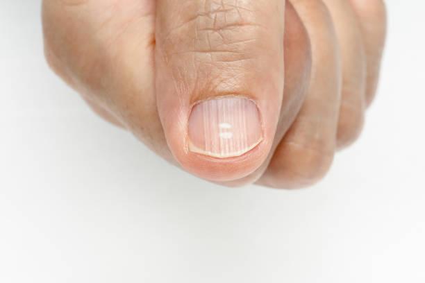 White spots and Vertical ridges on the fingernails symptoms stock photo