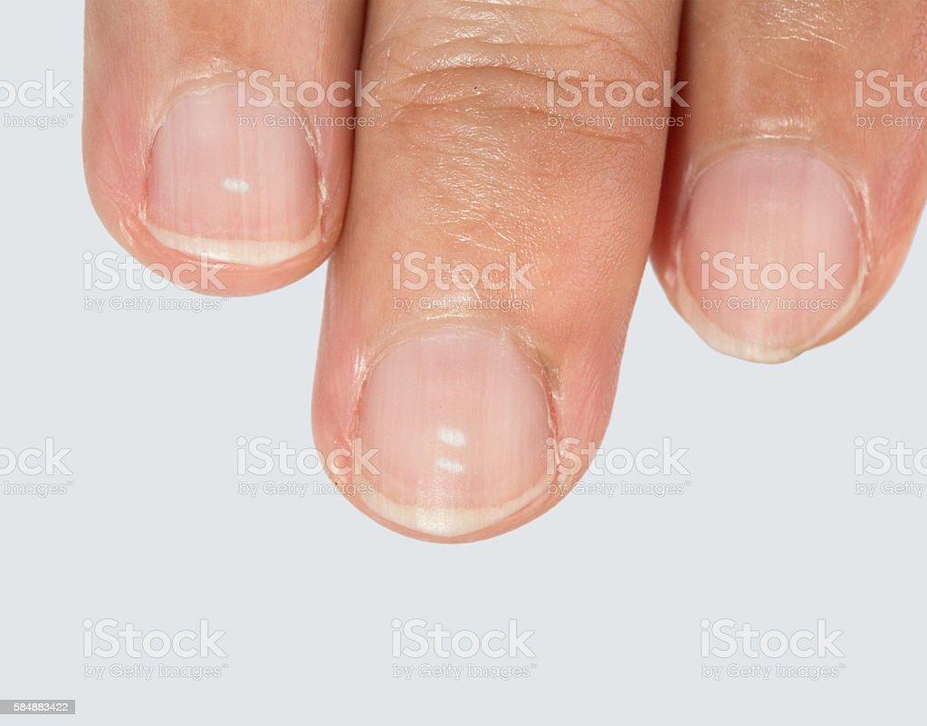 White spots on fingernails – Foto