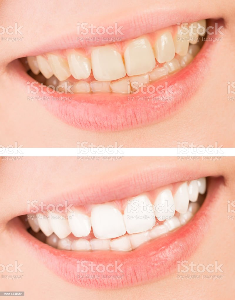 Whiten Smile And Teeth Whitening Treatment Before And After