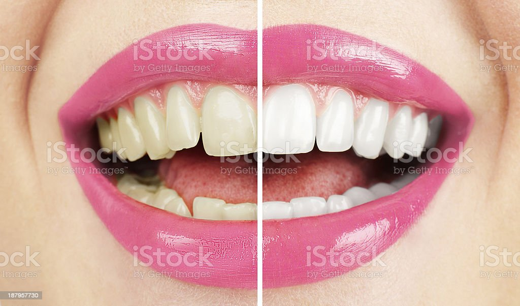 Whitening. Dental care. Healthy woman white teeth. stock photo