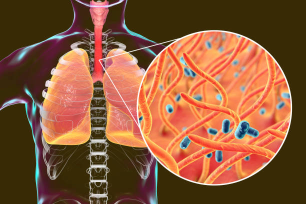 whooping cough bacteria bordetella pertussis in human airways - respiratory tract stock photos and pictures