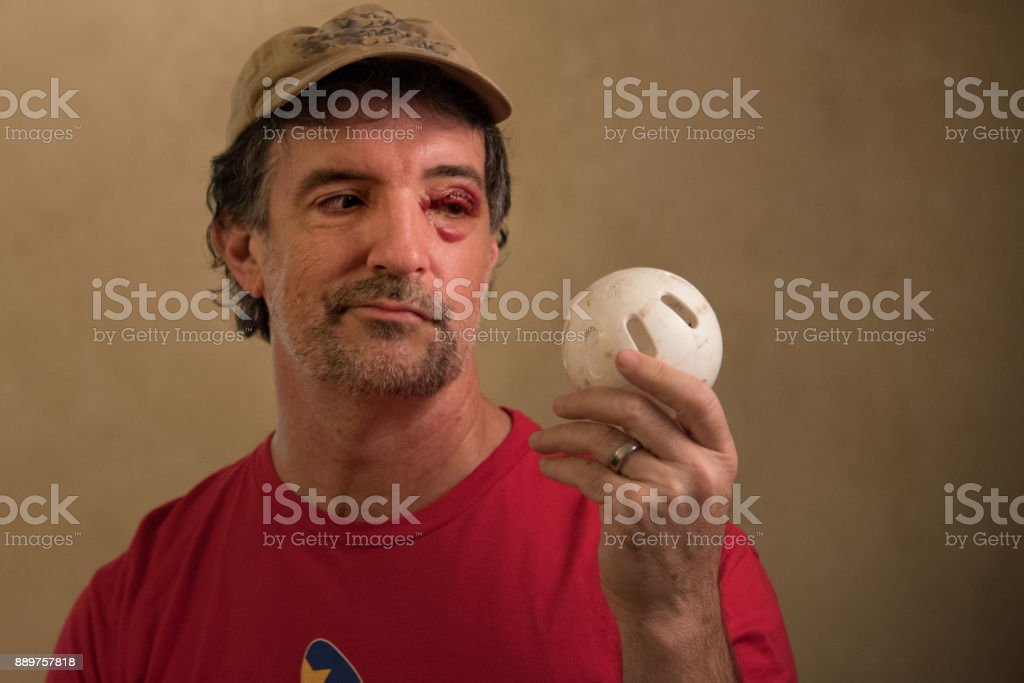 Wiffle Ball Black Eye stock photo