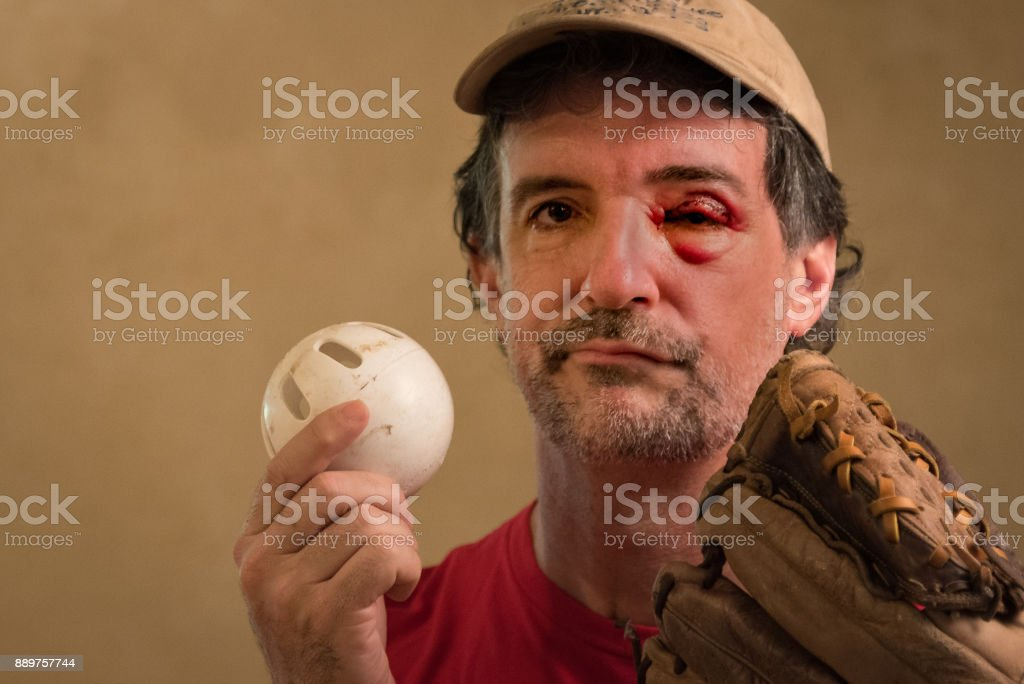 Wiffle Black Eye stock photo