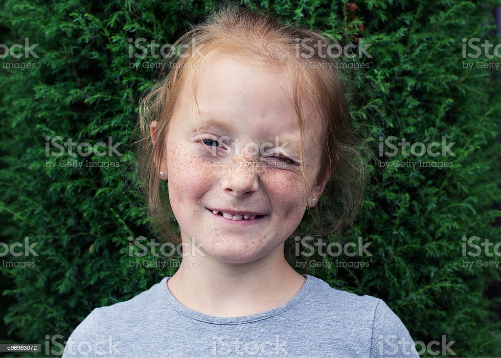 winking redhead girl with freckles stock photo