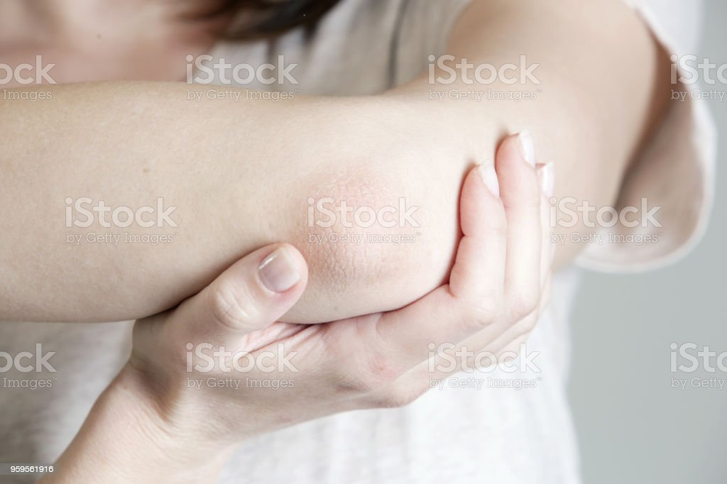 Winterizing dry itchy skin on the elbow area stock photo